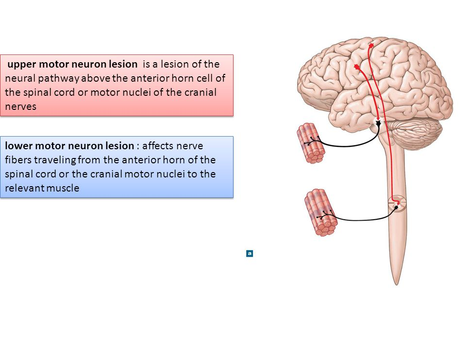 upper motor neuron lesion is a lesion of the neural pathway above the anterior horn cell of the spinal cord or motor nuclei of the cranial nerves
