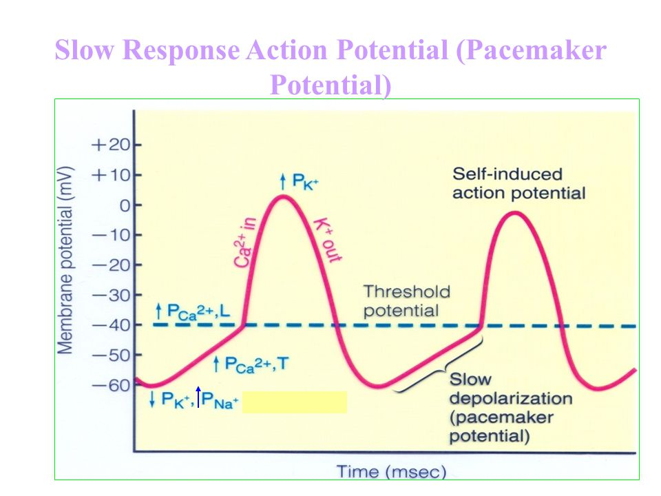 Slow Response Action Potential (Pacemaker Potential)
