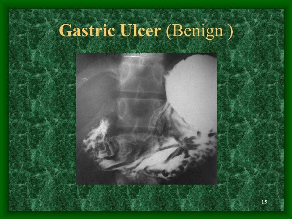 Gastric Ulcer (Benign )