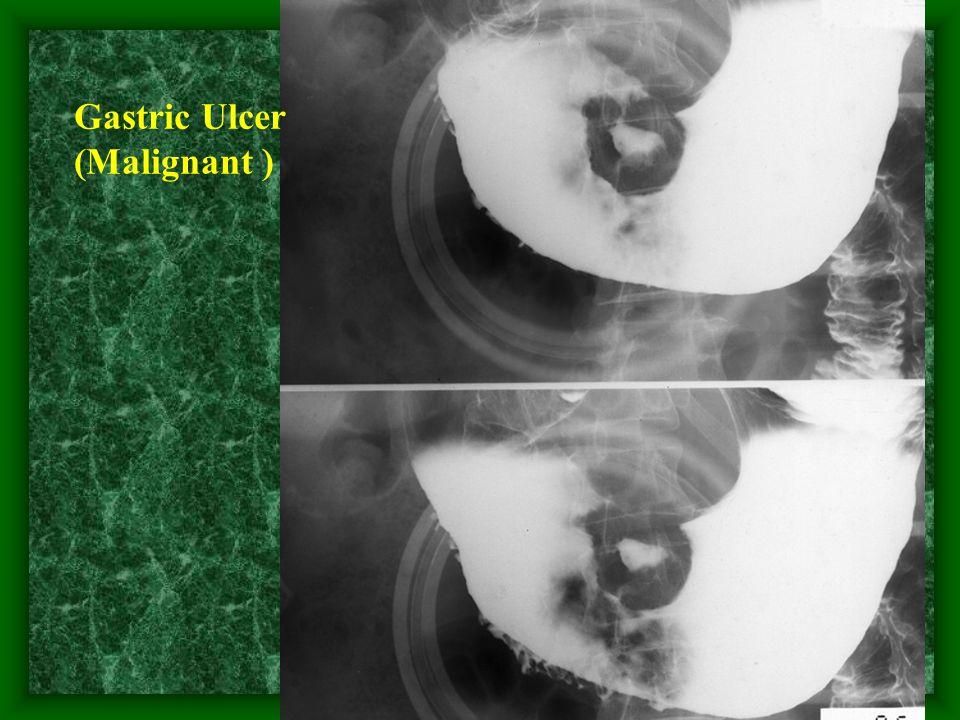 Gastric Ulcer (Malignant )