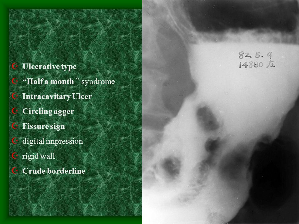 Ulcerative type Half a month syndrome. Intracavitary Ulcer. Circling agger. Fissure sign. digital impression.