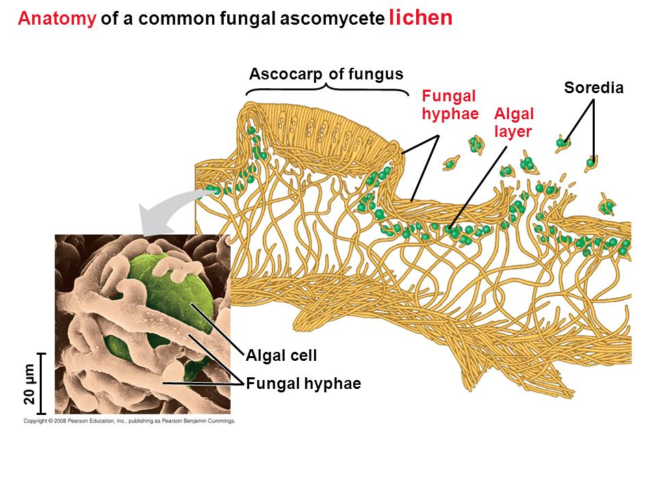 Anatomy of a common fungal ascomycete lichen