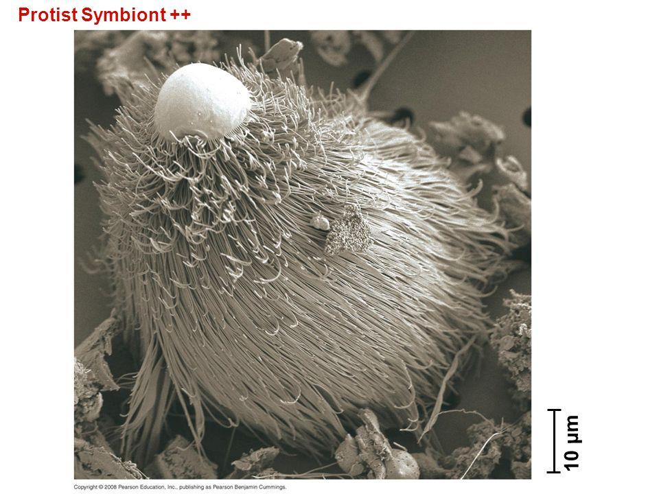 Protist Symbiont ++ Figure 28.26 A protist symbiont 10 µm