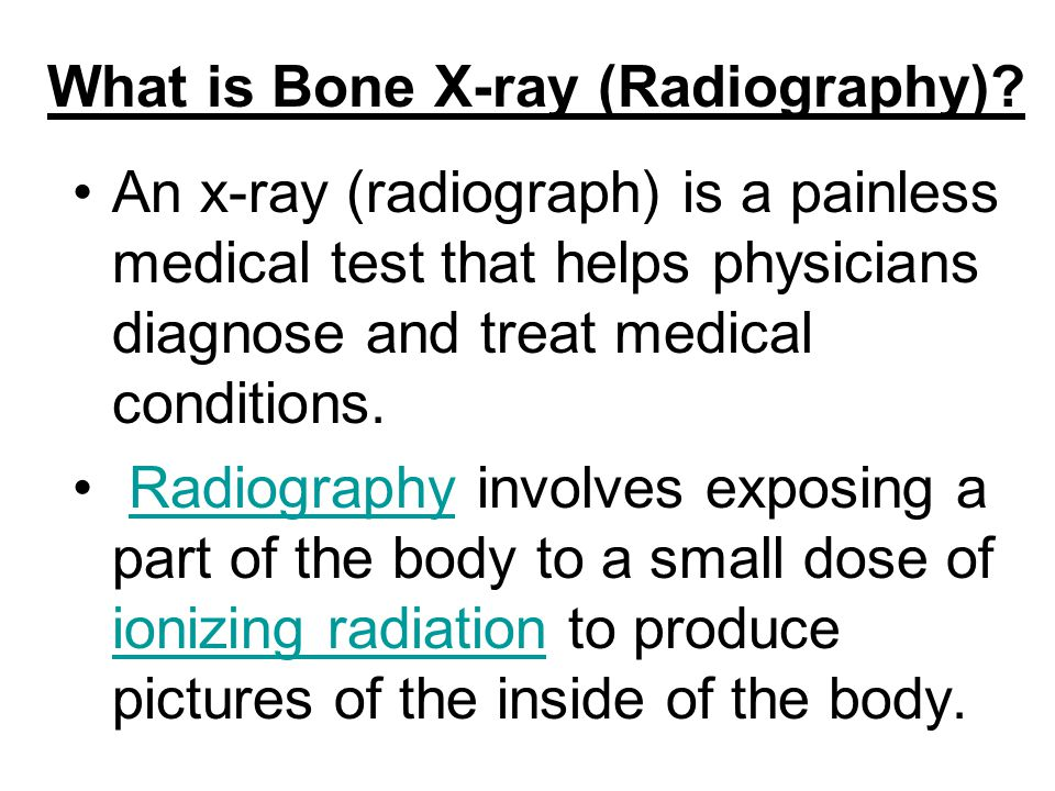 What is Bone X-ray (Radiography)