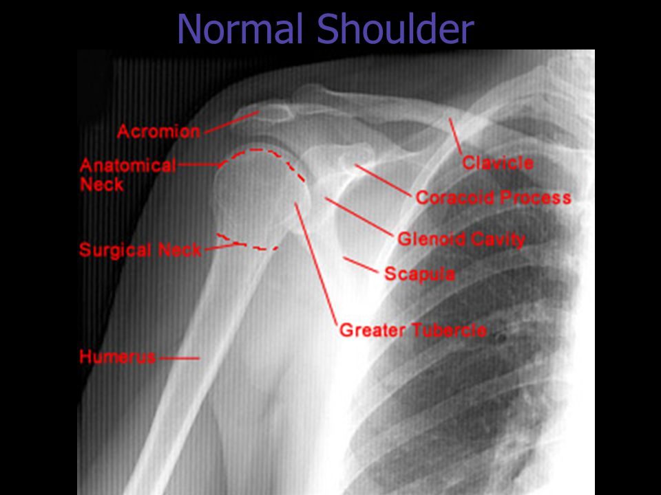 Normal Shoulder