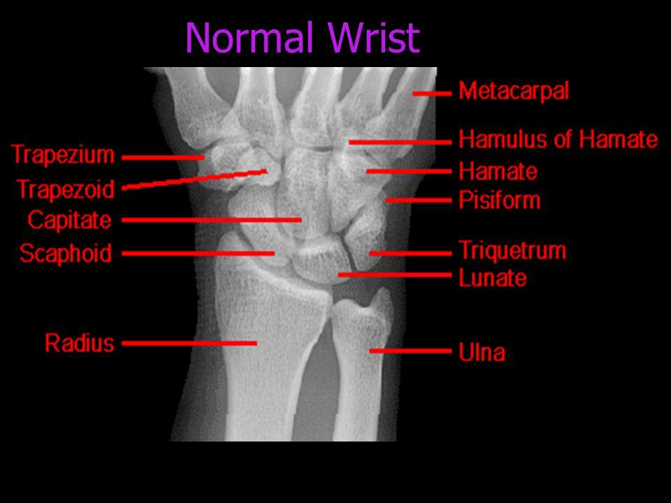 Normal Wrist