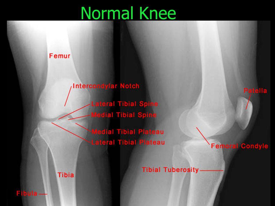 Normal Knee