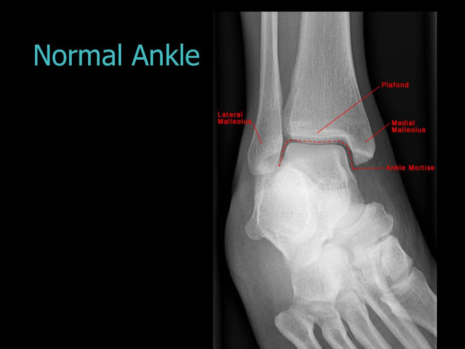 Normal Ankle