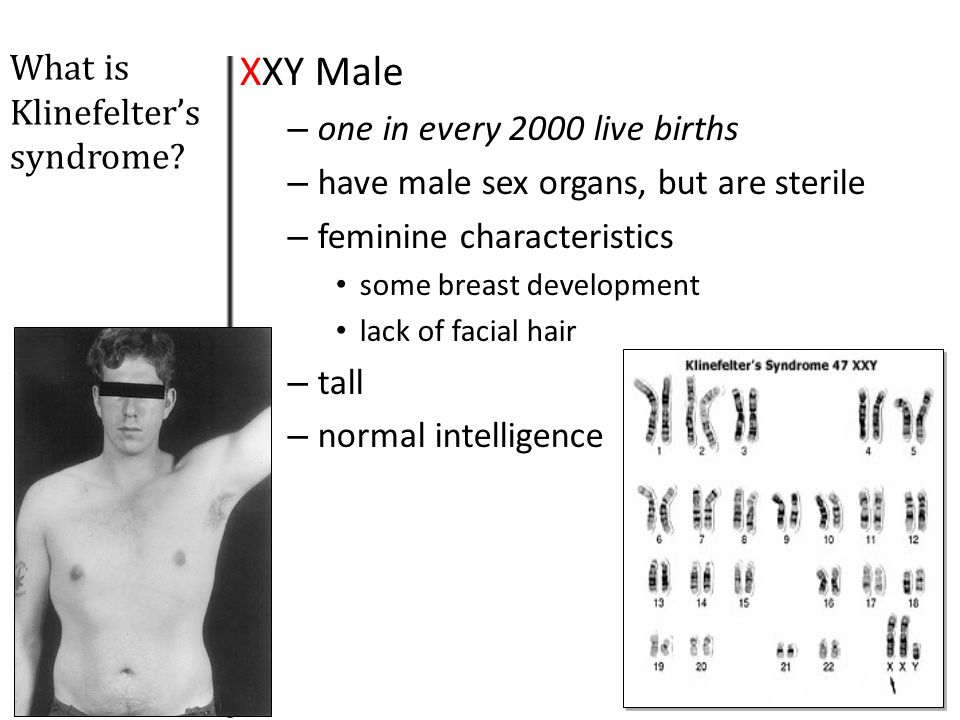 XXY Male What is Klinefelter's syndrome one in every 2000 live births