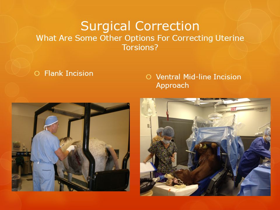 Surgical Correction What Are Some Other Options For Correcting Uterine Torsions