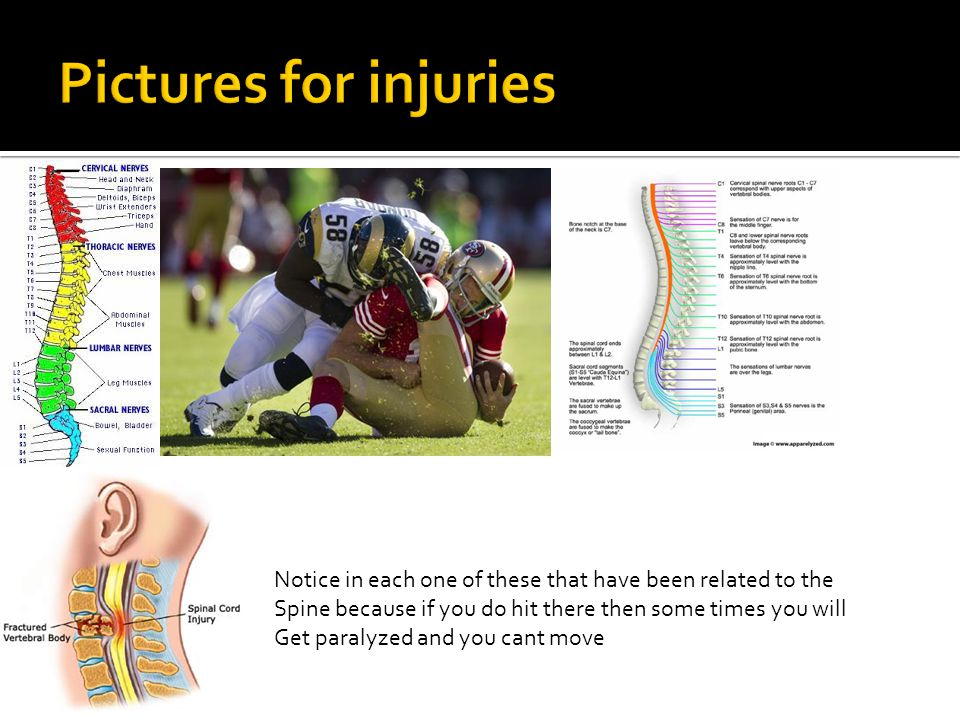 Pictures for injuries Notice in each one of these that have been related to the. Spine because if you do hit there then some times you will.