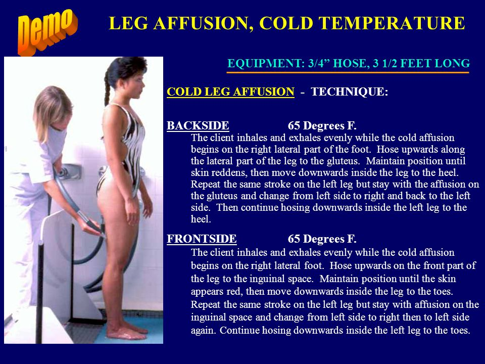 LEG AFFUSION, COLD TEMPERATURE