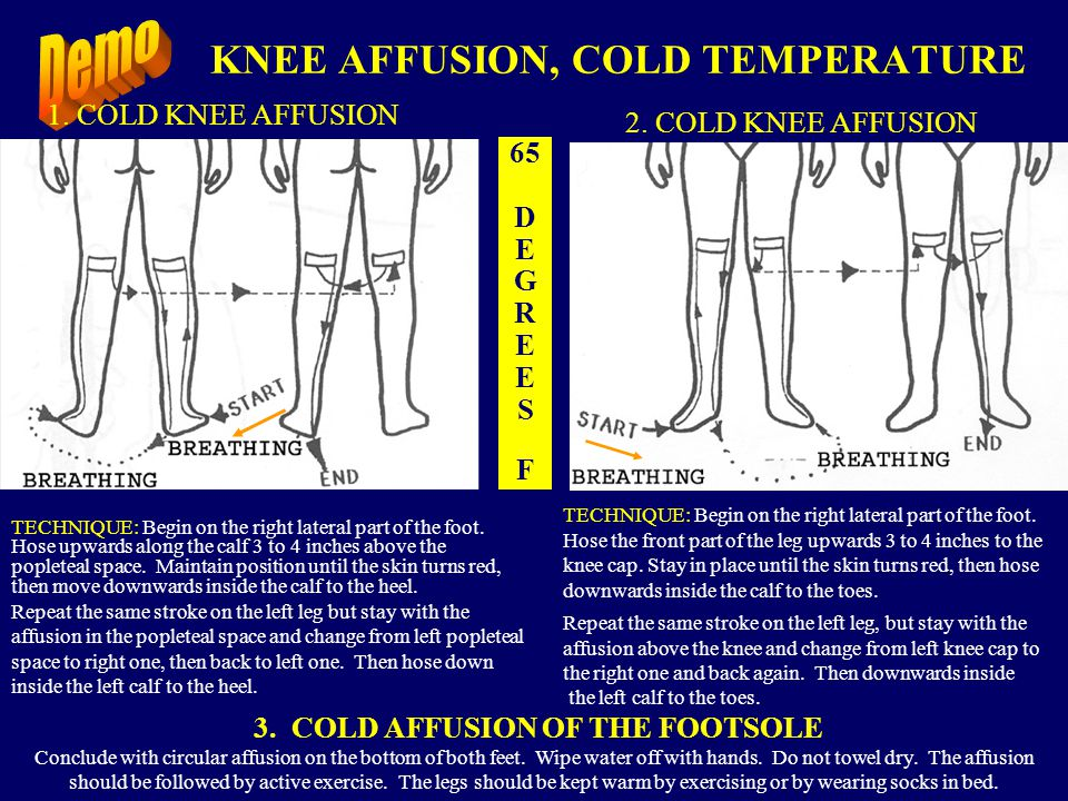 KNEE AFFUSION, COLD TEMPERATURE