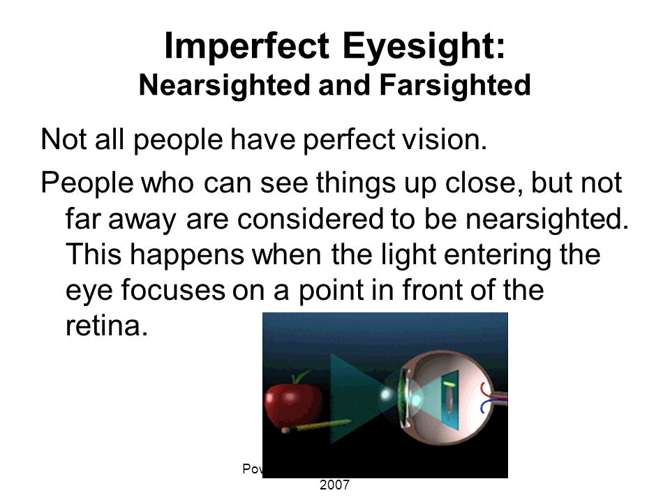 Imperfect Eyesight: Nearsighted and Farsighted