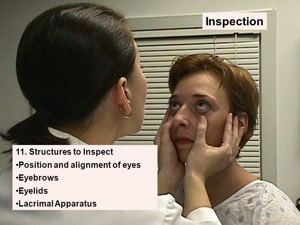 Inspection 11. Structures to Inspect Position and alignment of eyes