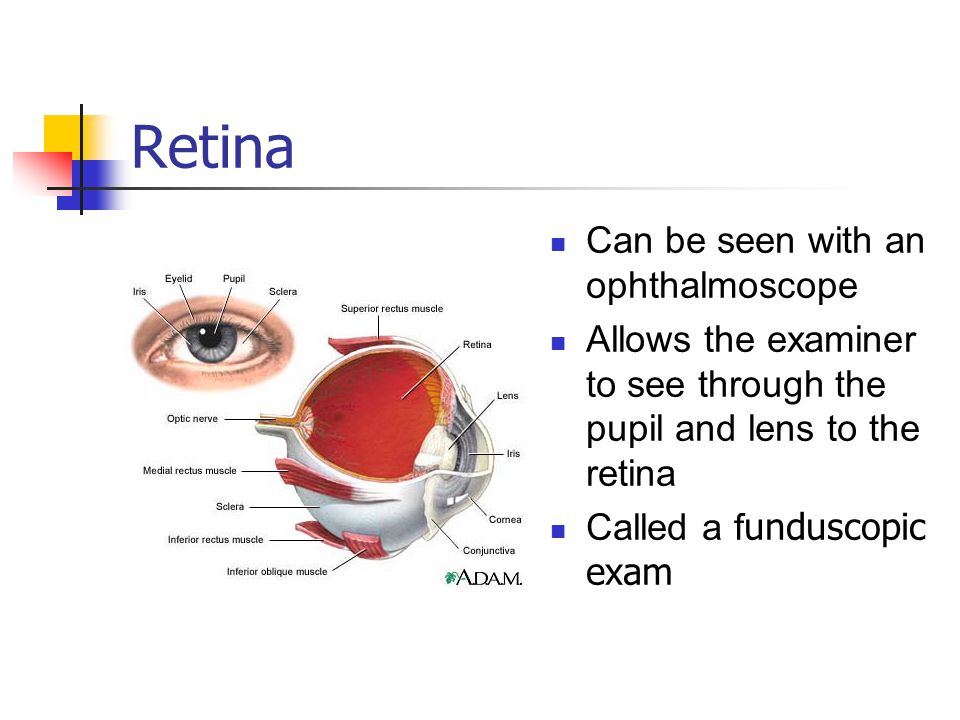 Retina Can be seen with an ophthalmoscope