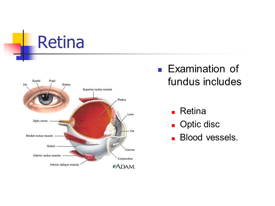 Retina Examination of fundus includes Retina Optic disc Blood vessels.