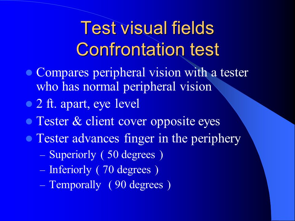 Test visual fields Confrontation test