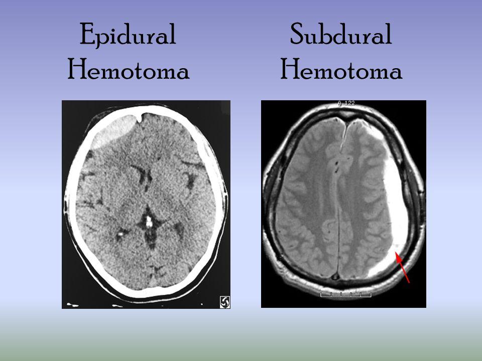 Epidural Hemotoma Subdural Hemotoma