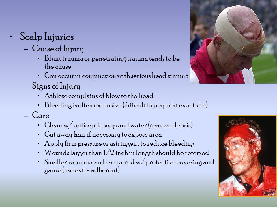 Scalp Injuries Cause of Injury Signs of Injury Care