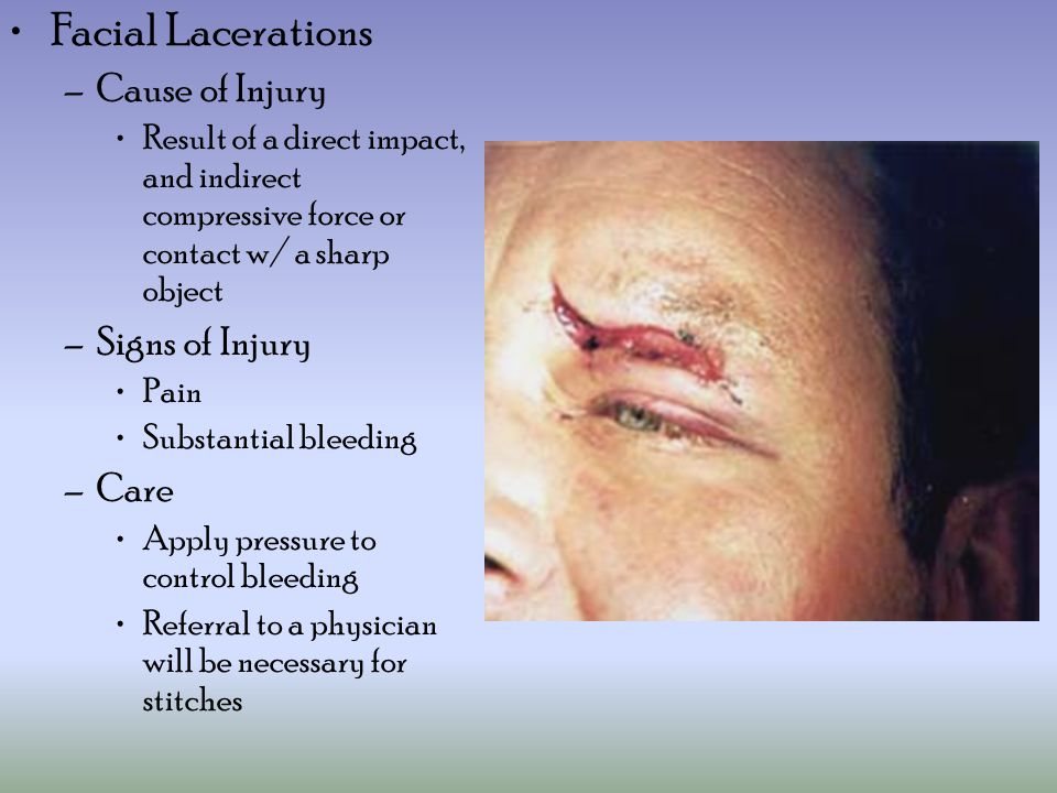 Facial Lacerations Cause of Injury Signs of Injury Care