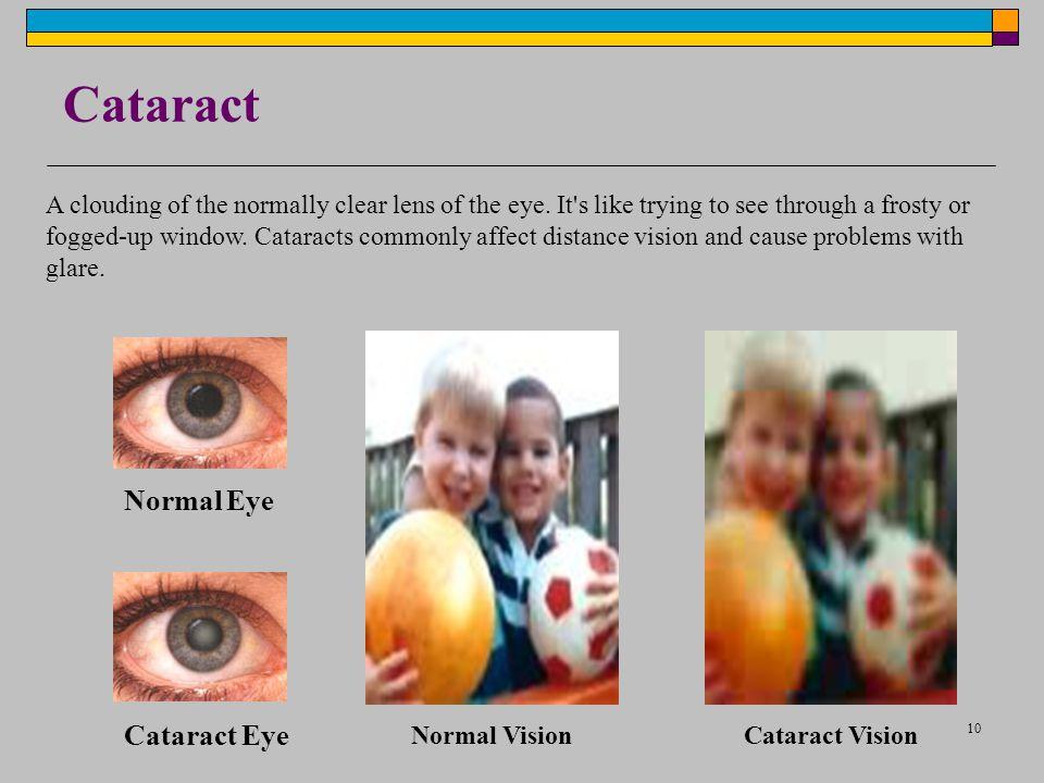 Cataract Normal Eye Cataract Eye
