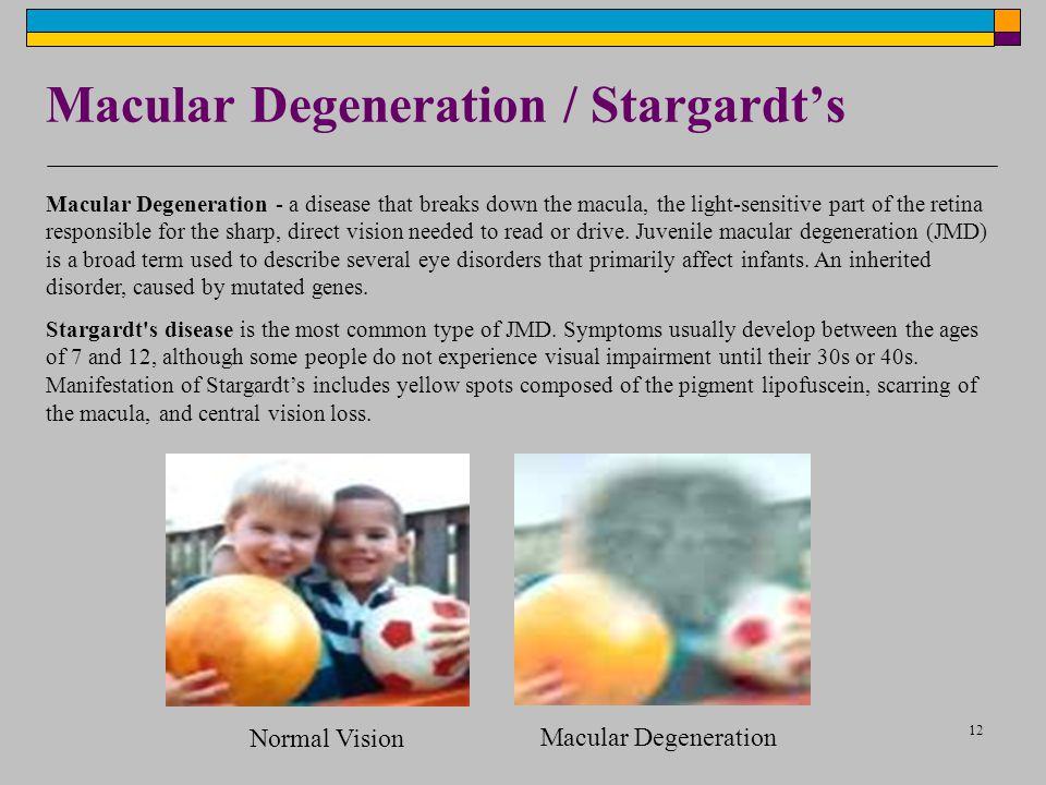Macular Degeneration / Stargardt's