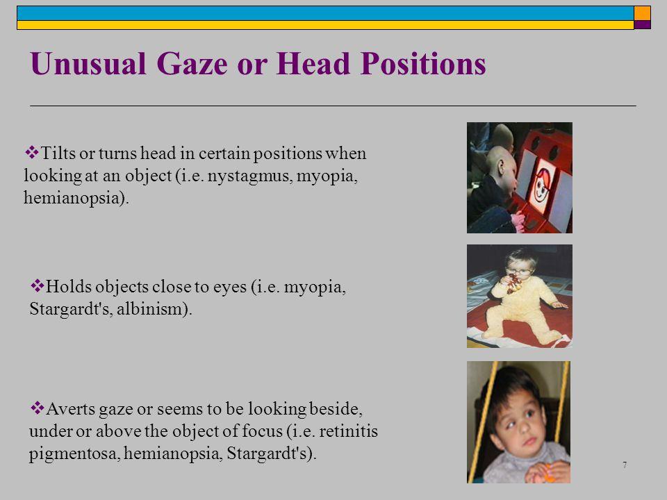 Unusual Gaze or Head Positions