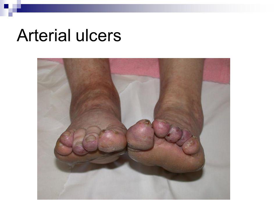 Arterial ulcers