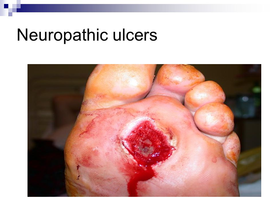 Neuropathic ulcers