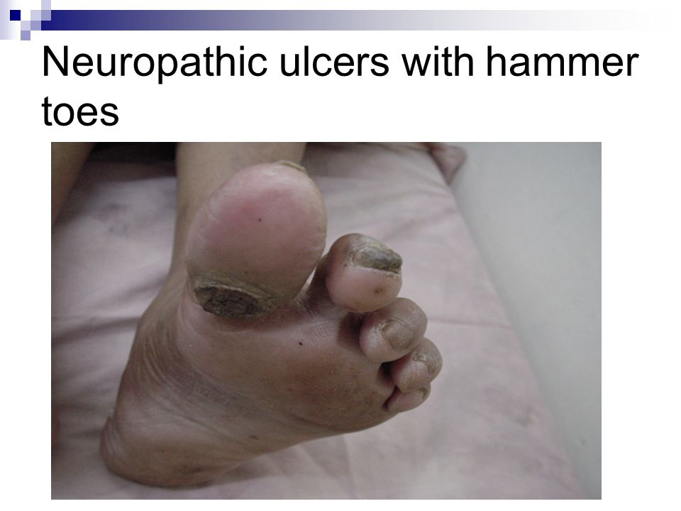 Neuropathic ulcers with hammer toes