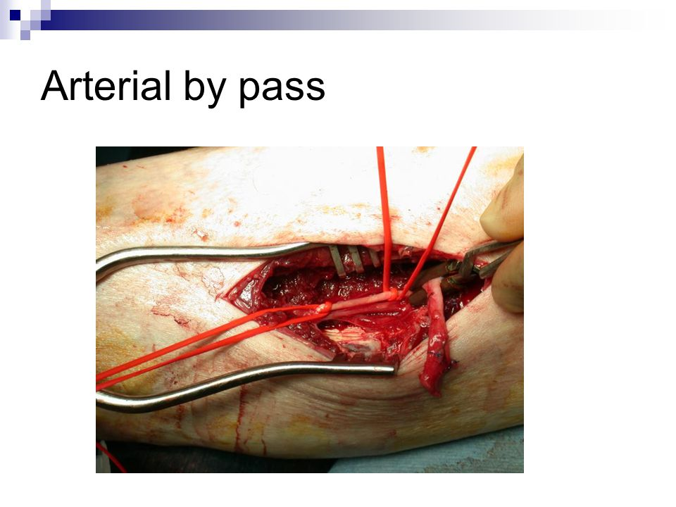 Arterial by pass