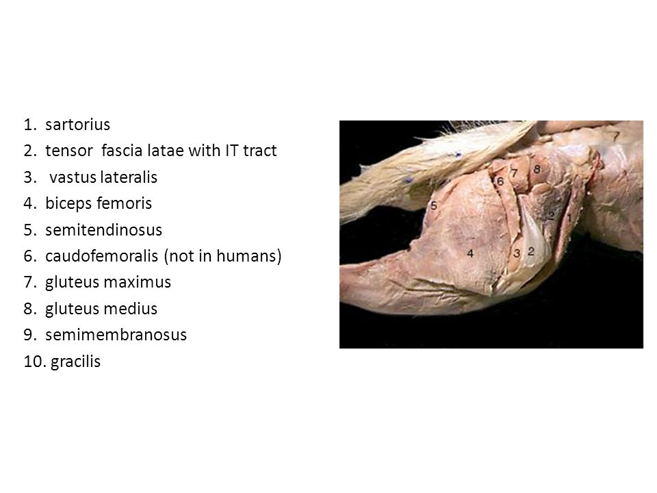 1. sartorius 2. tensor fascia latae with IT tract. 3. vastus lateralis. 4. biceps femoris. 5. semitendinosus.