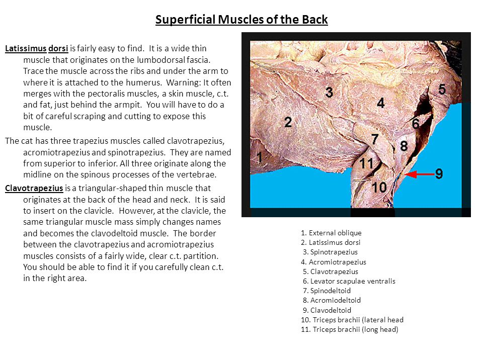 Superficial Muscles of the Back