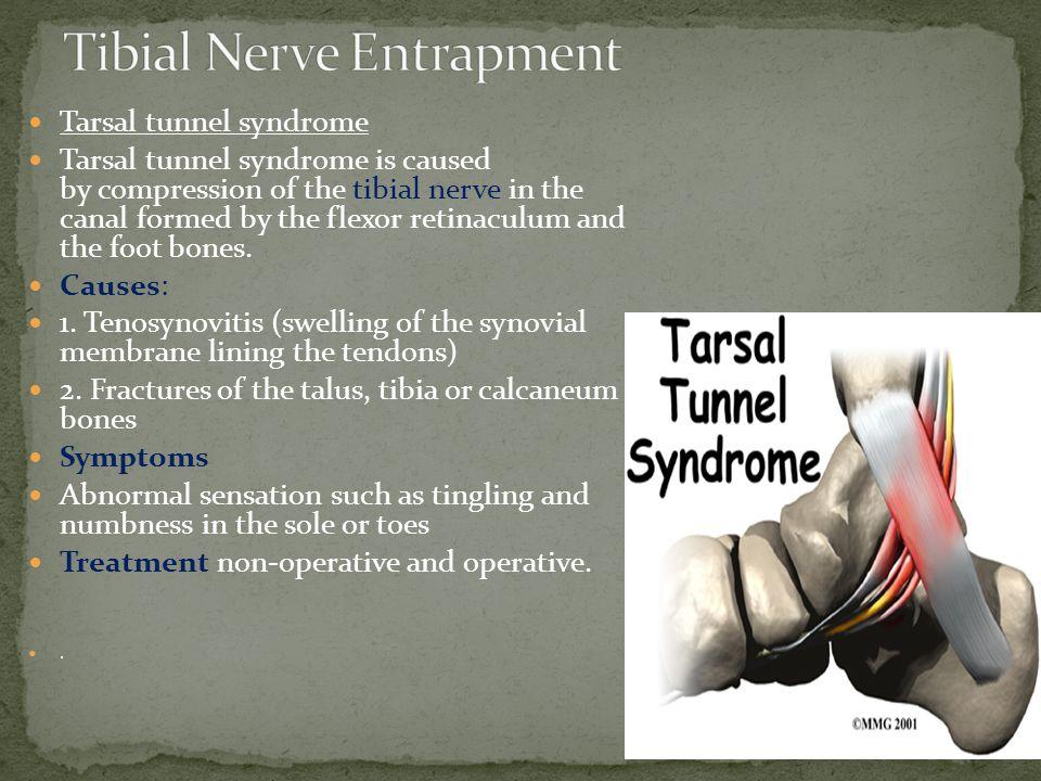 Tibial Nerve Entrapment