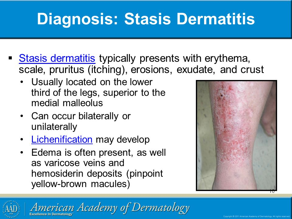 Diagnosis: Stasis Dermatitis