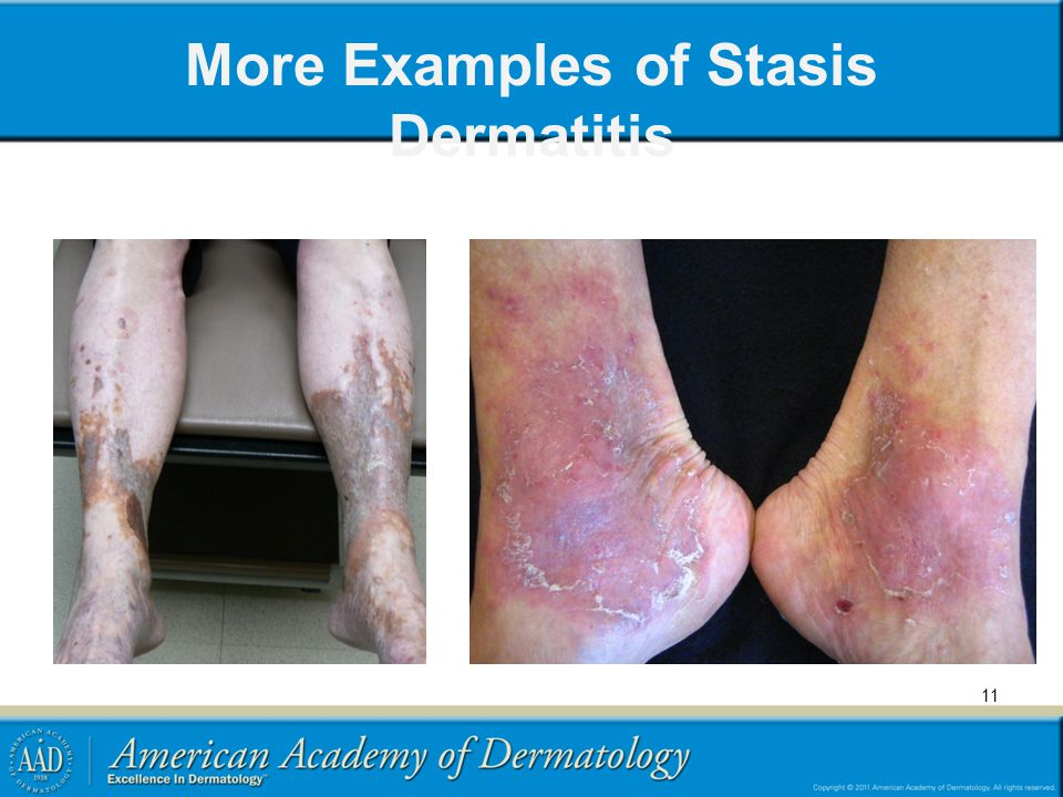 More Examples of Stasis Dermatitis