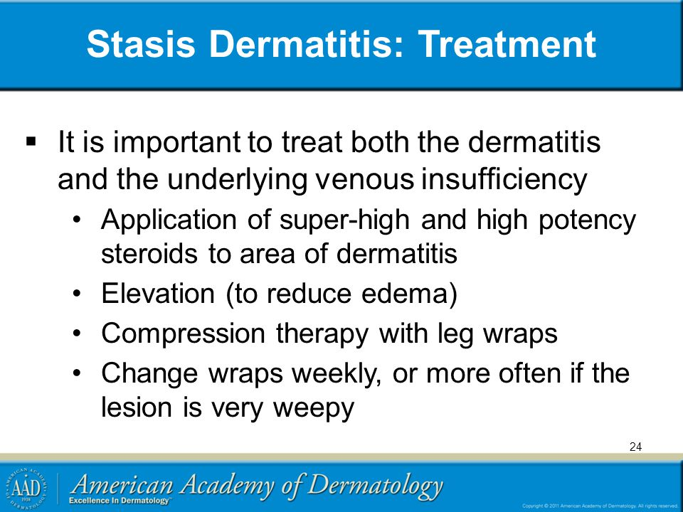 Stasis Dermatitis: Treatment