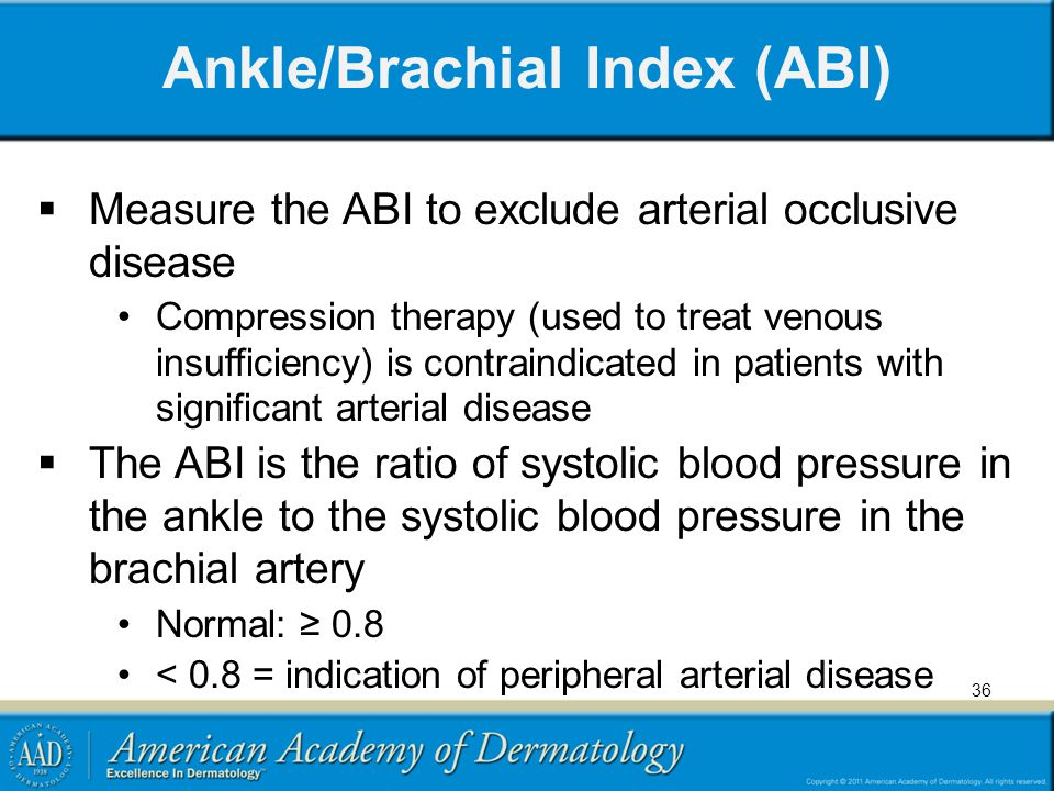 Ankle/Brachial Index (ABI)