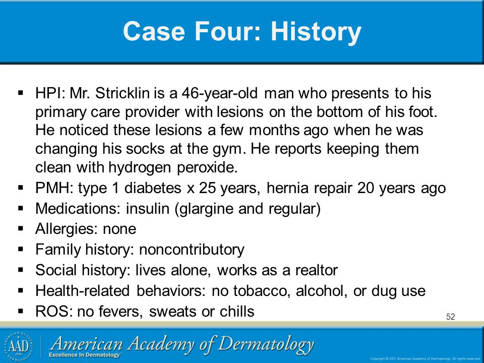 Case Four: History