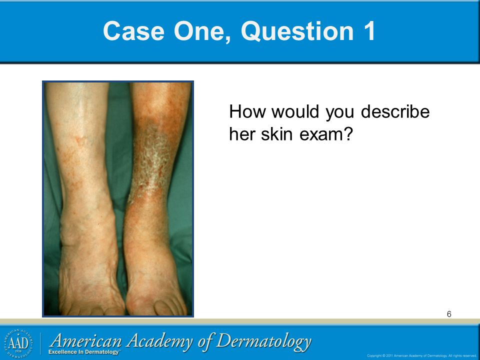 Case One, Question 1 How would you describe her skin exam