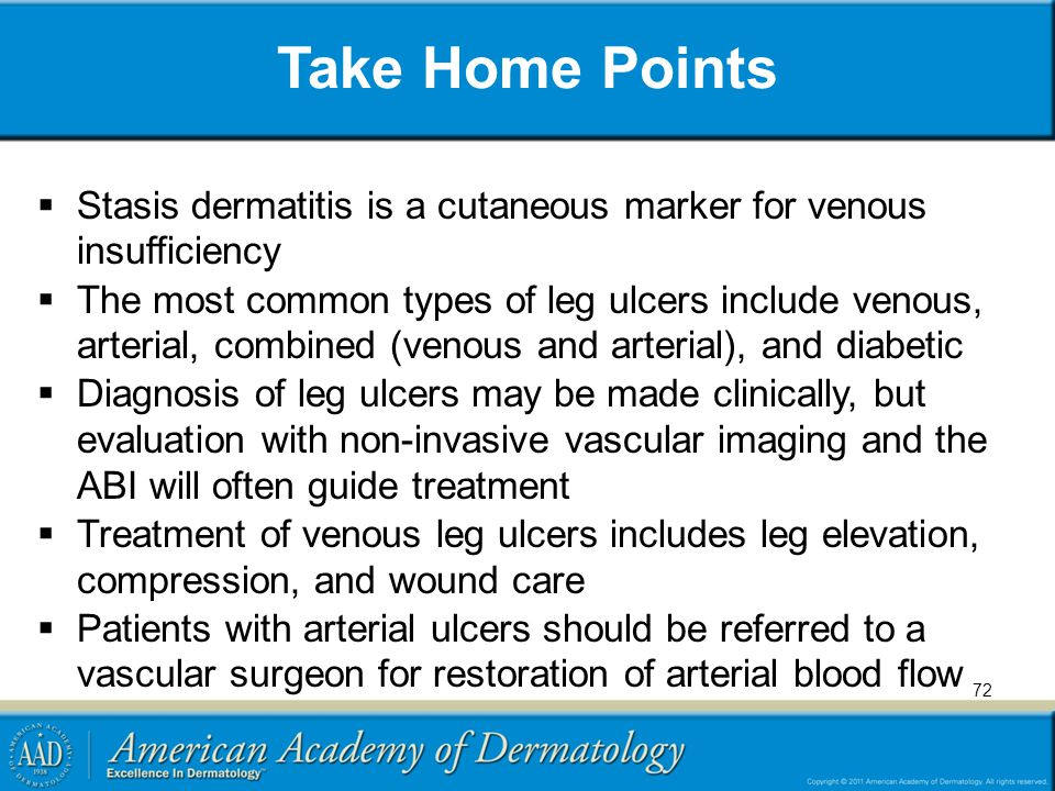Take Home Points Stasis dermatitis is a cutaneous marker for venous insufficiency.
