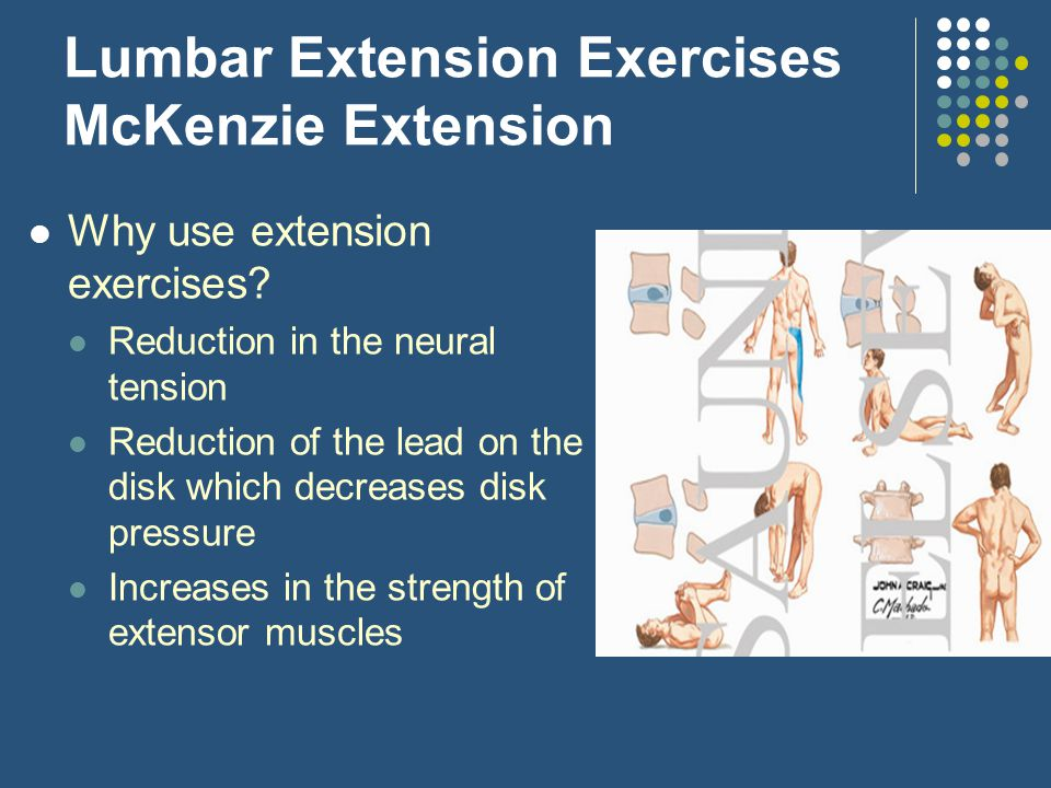 Lumbar Extension Exercises McKenzie Extension