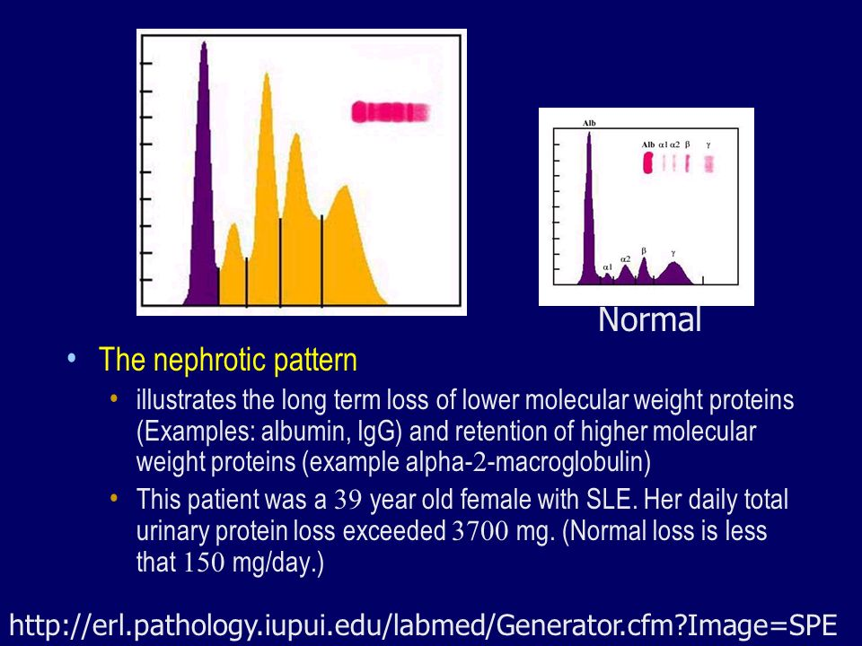 Normal The nephrotic pattern