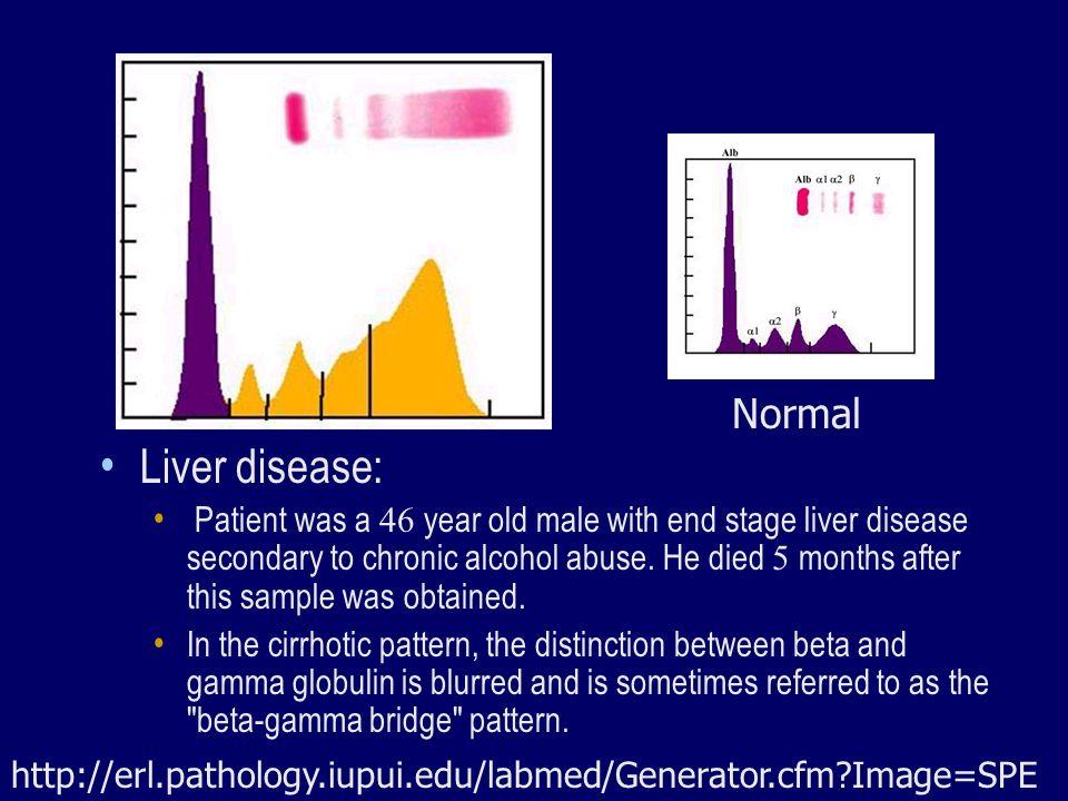 Normal Liver disease: