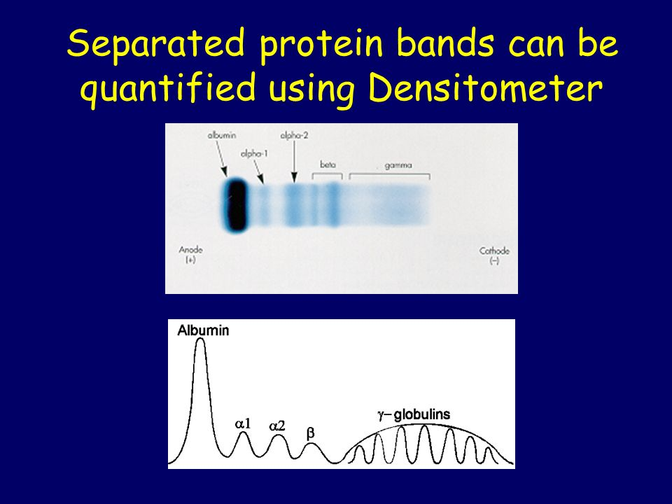 Separated protein bands can be quantified using Densitometer