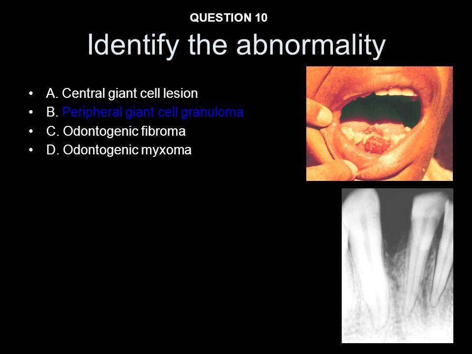 Identify the abnormality
