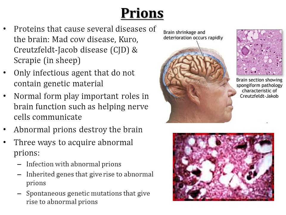 prions proteins as genes and infectious The unusual genetic properties of the non-chromosomal genetic elements [ure3] and [psi+] led to them being identified as prions (infectious proteins) of.