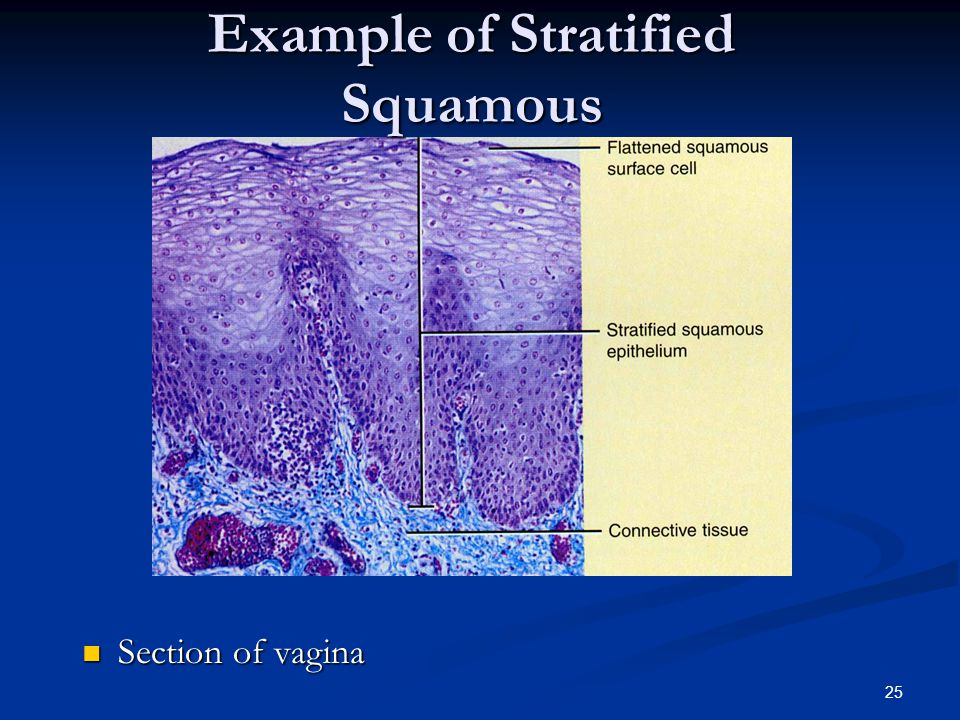 Example of Stratified Squamous