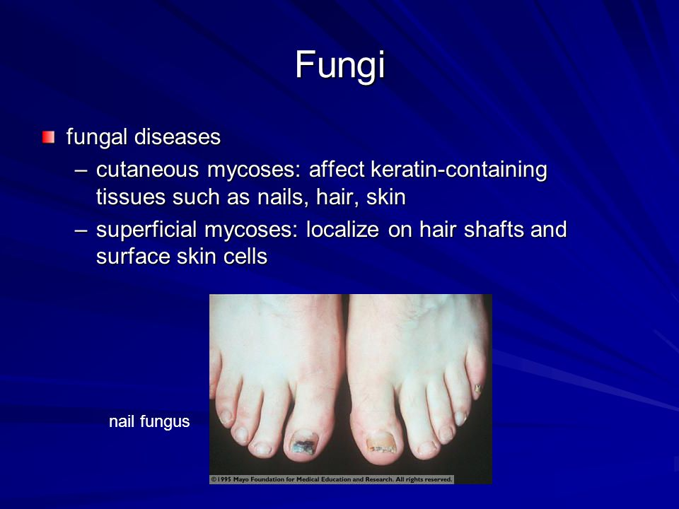 Fungi fungal diseases. cutaneous mycoses: affect keratin-containing tissues such as nails, hair, skin.